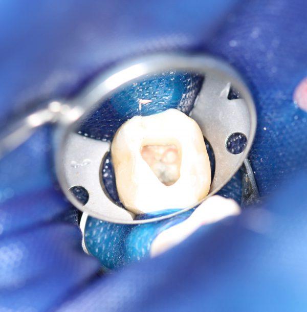dr scherer endodontie